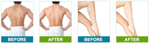 dermology hair removal cream beauty best reviews Tanning Lotion Before and After dermology before and after