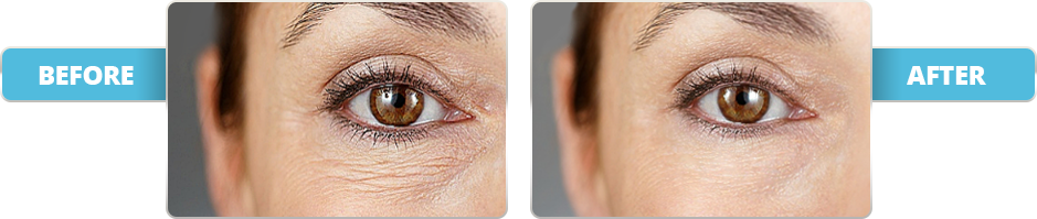 Apex Vitality Eye Serum Before and After
