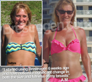 before-after-brestogen